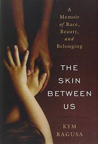 The Skin Between Us: A Memoir of Race